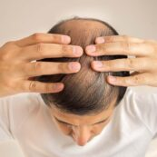 Is There a Right Age For Hair Transplant?